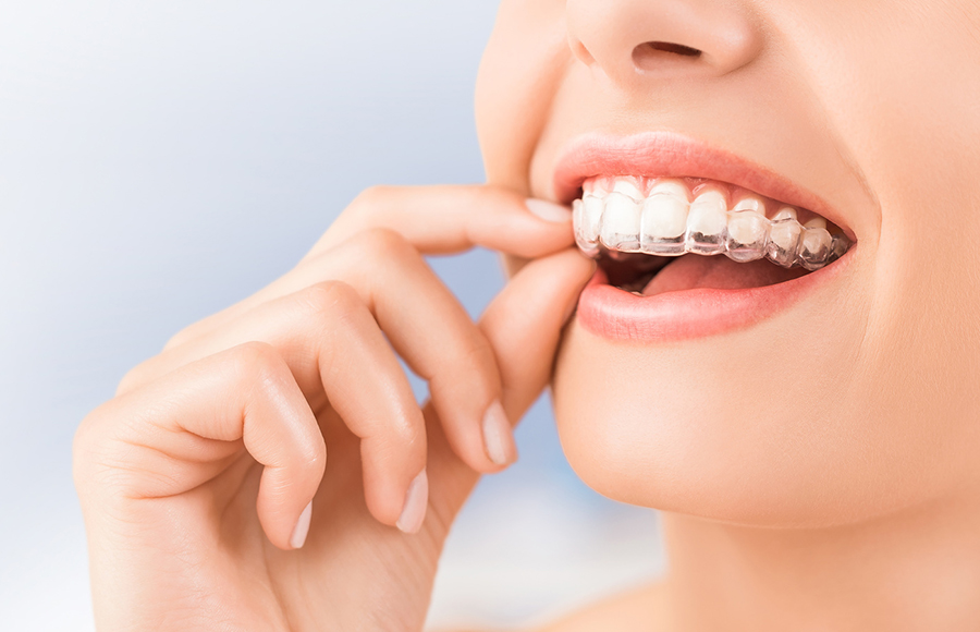 What Are Invisalign Invisible Braces?