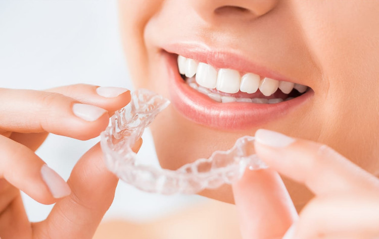 Advantages of Invisalign Compared to Traditional Braces
